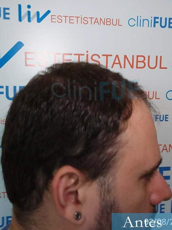 Miquel 32 años de barcelona injerto capilar turquia dia operacion antes 3