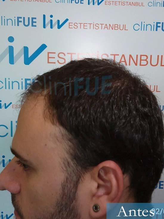 Miquel 32 años de barcelona injerto capilar turquia dia operacion antes 4