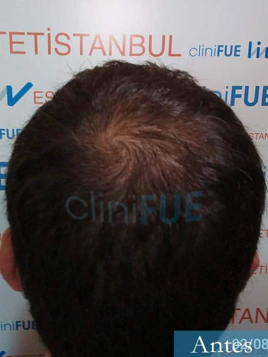 Miquel 32 años de barcelona injerto capilar turquia dia operacion antes 5