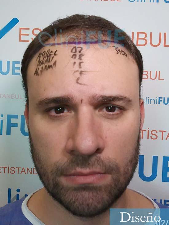 Miquel 32 años de barcelona injerto capilar turquia dia operacion diseno