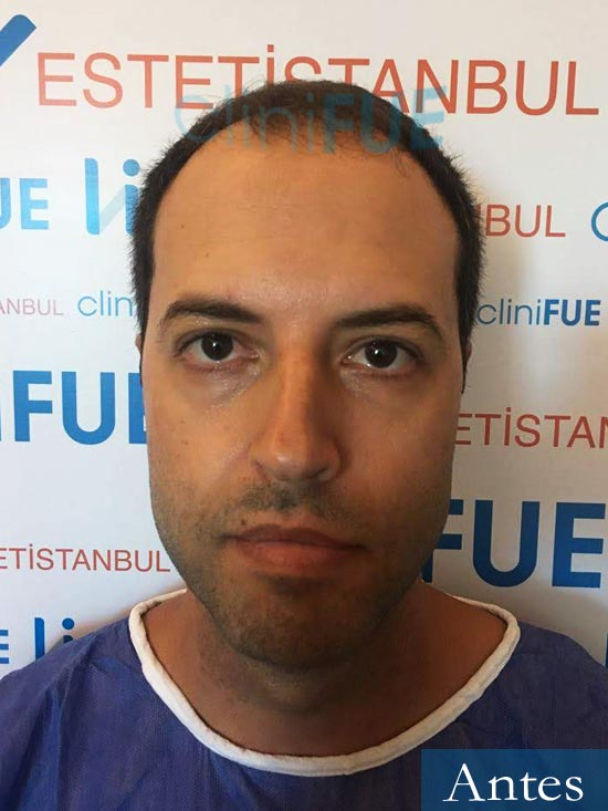 Raul 38 Murcia injerto de pelo dia operacion antes