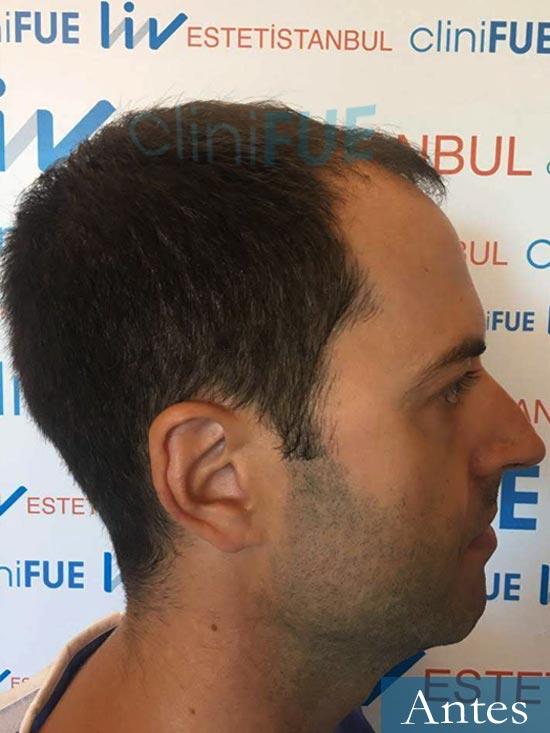Raul 38 Murcia injerto de pelo dia operacion antes 2