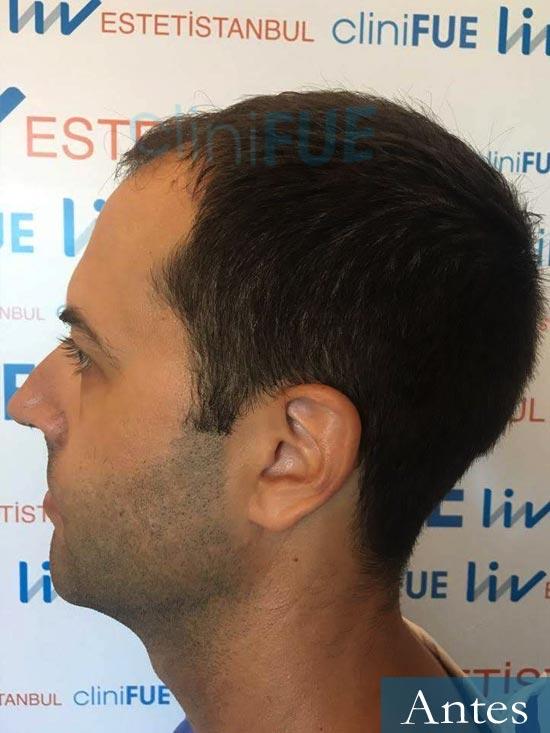 Raul 38 Murcia injerto de pelo dia operacion antes 3