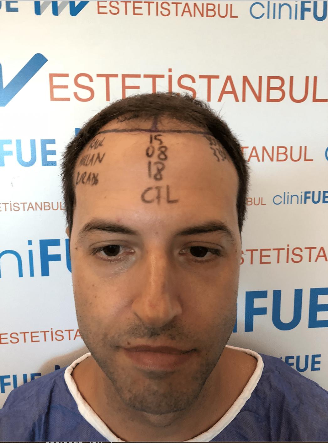Raul 38 Murcia injerto de pelo dia operacion diseno