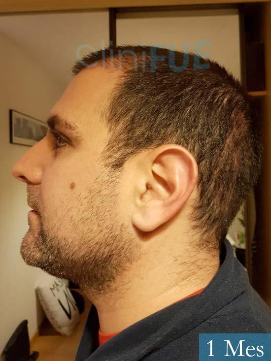 Ruben 33 anos Madrid injerto de pelo 1 mes 4