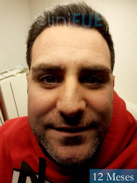 Ruben 33 anos Madrid injerto de pelo 12 meses