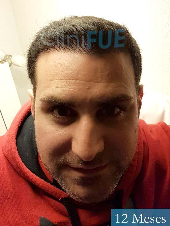 Ruben 33 anos Madrid injerto de pelo 12 meses 2