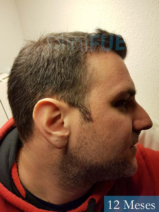 Ruben 33 anos Madrid injerto de pelo 12 meses 3