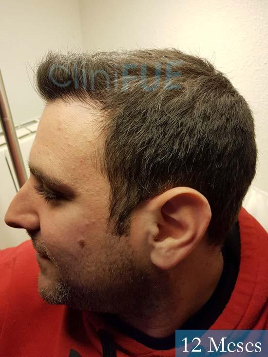 Ruben 33 anos Madrid injerto de pelo 12 meses 4