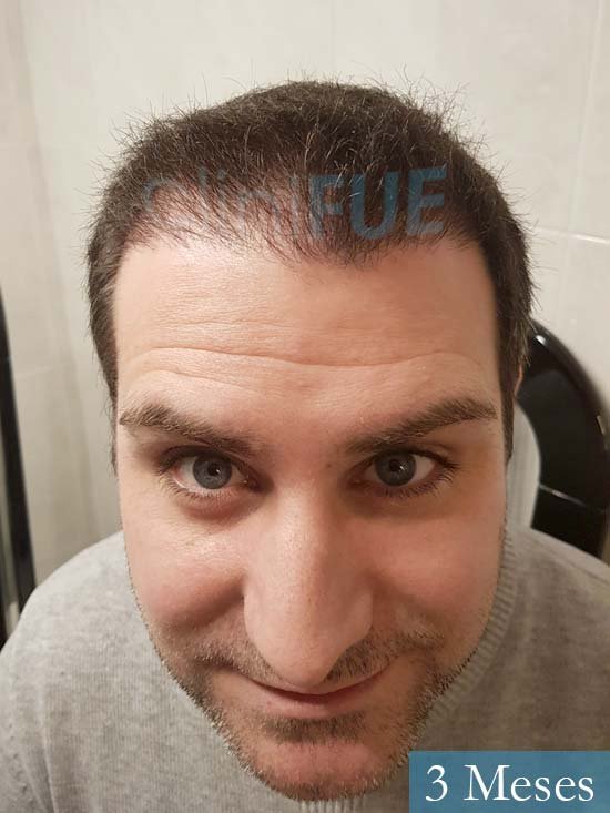 Ruben 33 anos Madrid injerto de pelo 3 meses