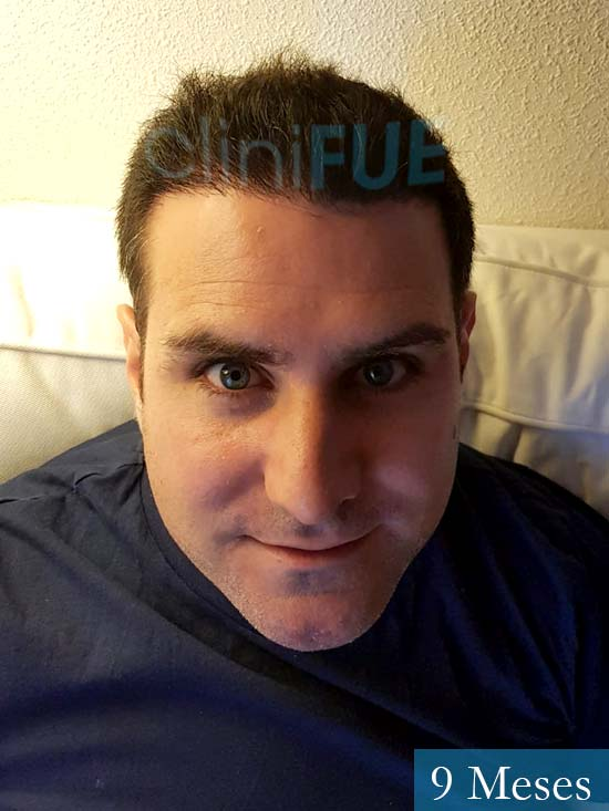 Ruben 33 anos Madrid injerto de pelo 9 meses 2