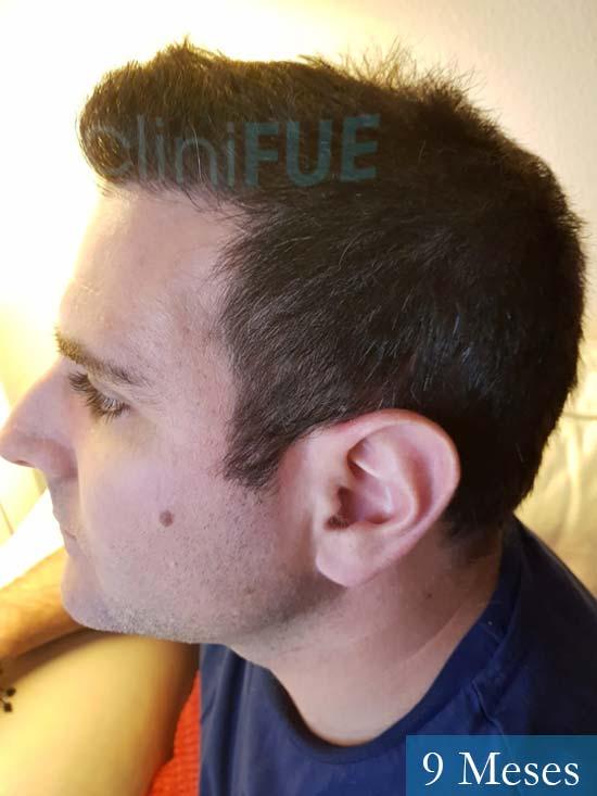 Ruben 33 anos Madrid injerto de pelo 9 meses 4