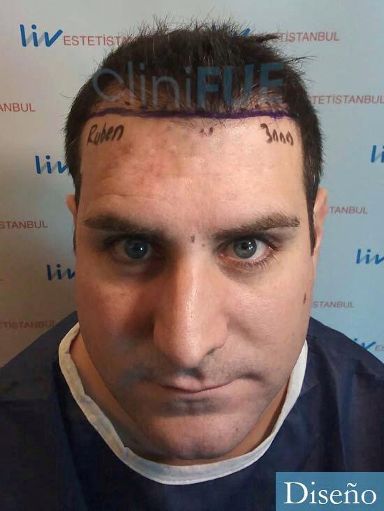 Ruben 33 anos Madrid injerto de pelo dia operacion diseno