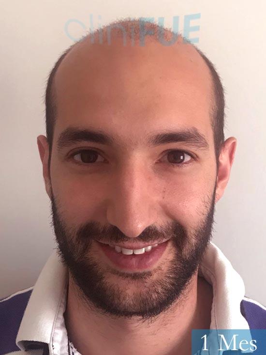 Sergio-28-Madrid-injerto-capilar-estambul- 15 dias