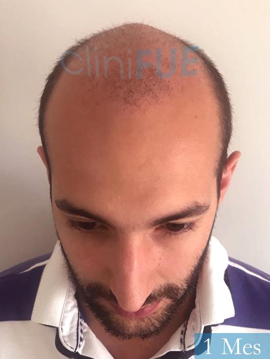 Sergio-28-Madrid-injerto-capilar-estambul- 15 dias 2