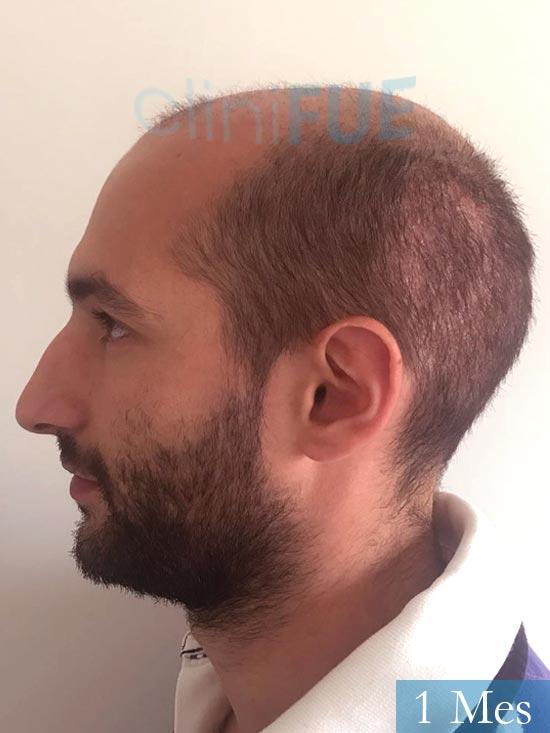 Sergio-28-Madrid-injerto-capilar-estambul- 15 dias 4