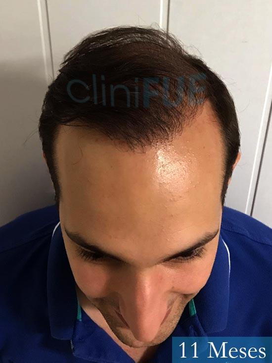 Sergio-28-Madrid-injerto-capilar-estambul- 11 meses 2