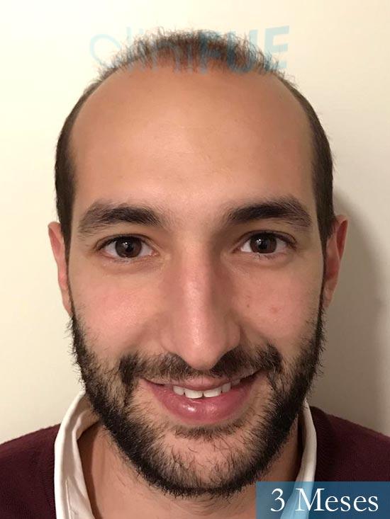 Sergio-28-Madrid-injerto-capilar-estambul- 3 meses