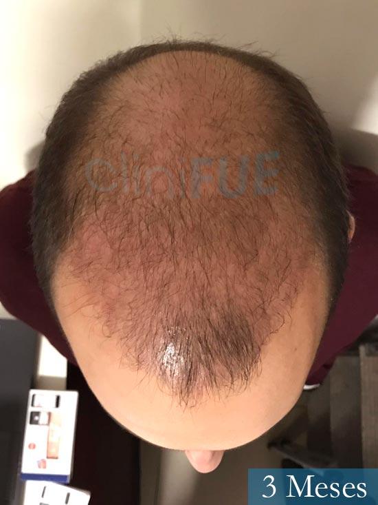 Sergio-28-Madrid-injerto-capilar-estambul- 3 meses 3