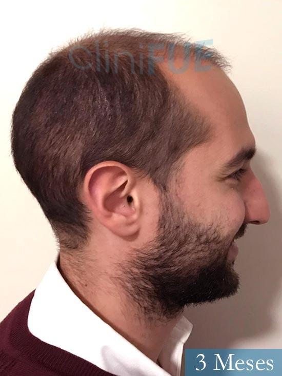 Sergio-28-Madrid-injerto-capilar-estambul- 3 meses 4