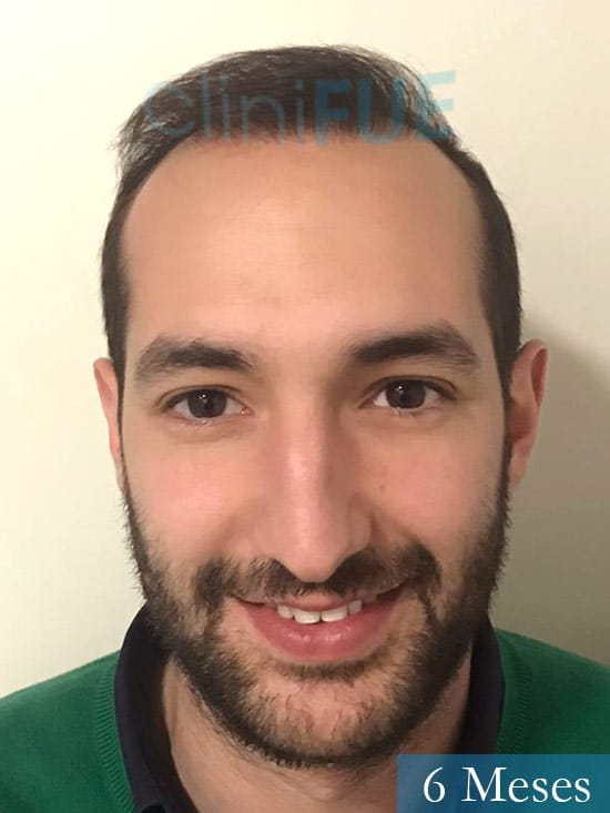 Sergio-28-Madrid-injerto-capilar-estambul- 6 meses