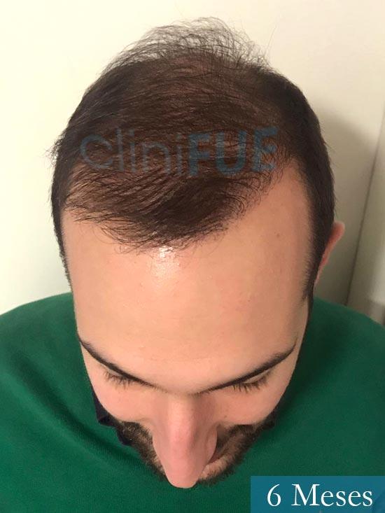 Sergio-28-Madrid-injerto-capilar-estambul- 6 meses 2