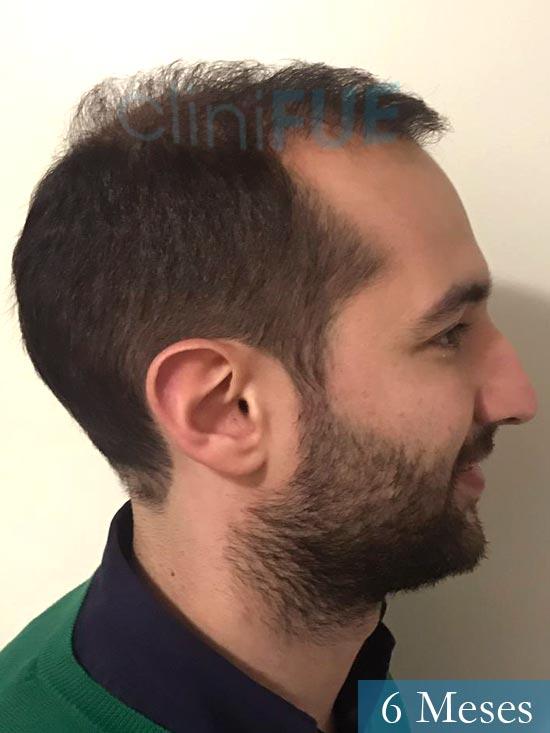 Sergio-28-Madrid-injerto-capilar-estambul- 6 meses 4