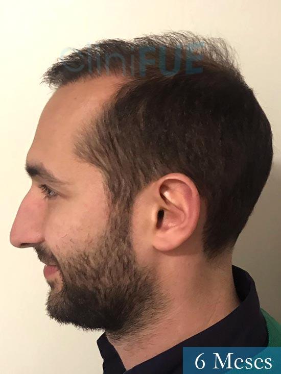 Sergio-28-Madrid-injerto-capilar-estambul- 6 meses 5