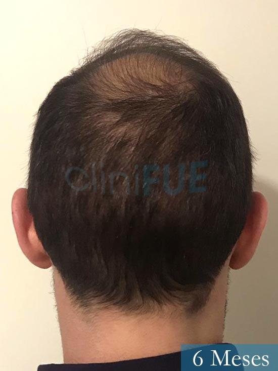 Sergio-28-Madrid-injerto-capilar-estambul- 6 meses 6