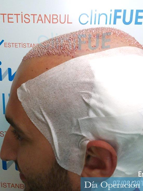 Sergio-28-Madrid-injerto-capilar-estambul-dia-operacion 3