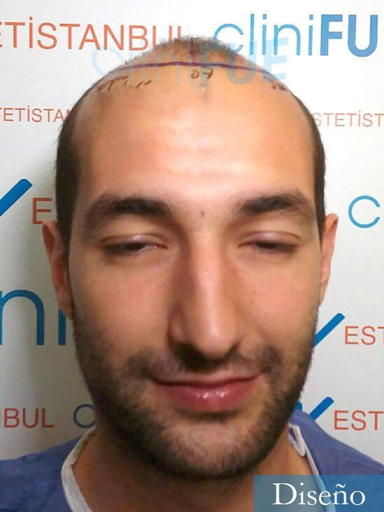 Sergio-28-Madrid-injerto-capilar-estambul-dia-operacion diseno