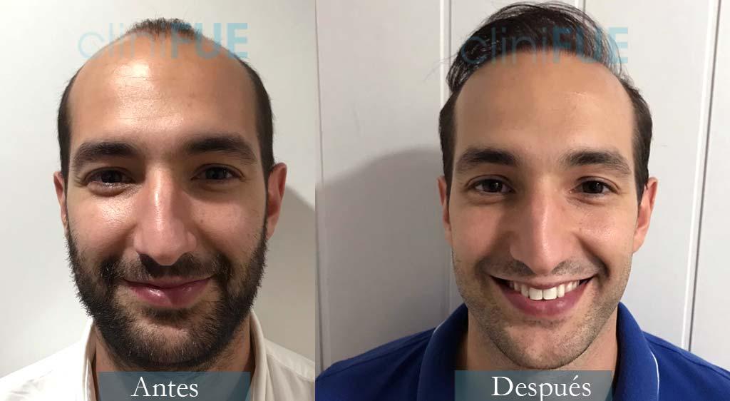 Injerto capilar de Sergio 28 Años de Madrid con cliniFUE