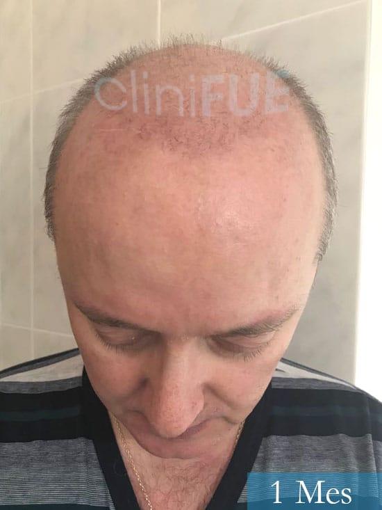 Vicente 54 anos Valencia injerto pelo turquia 1 mes 2