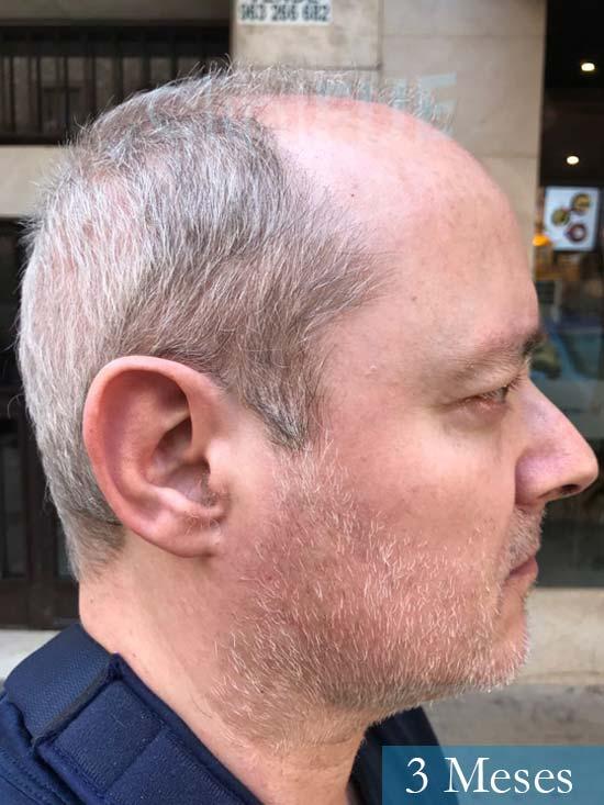 Vicente 54 anos Valencia injerto pelo turquia 3 meses 2