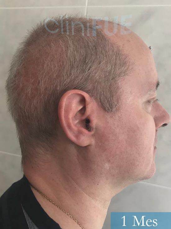 Vicente 54 anos Valencia injerto pelo turquia 1 mes 4