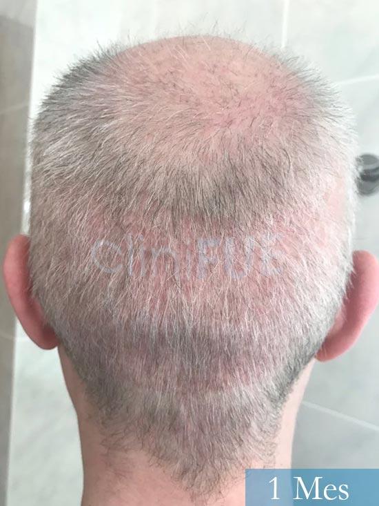 Vicente 54 anos Valencia injerto pelo turquia 1 mes 5