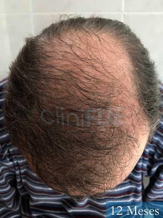 Vicente 54 anos Valencia injerto pelo turquia 12 meses 2
