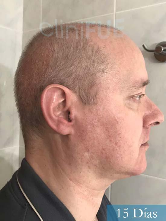 Vicente 54 anos Valencia injerto pelo turquia 15 dias 3