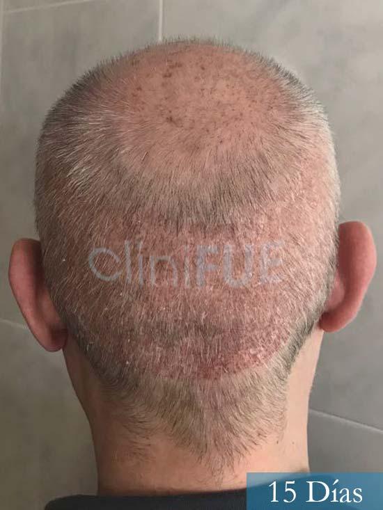 Vicente 54 anos Valencia injerto pelo turquia 15 dias 5