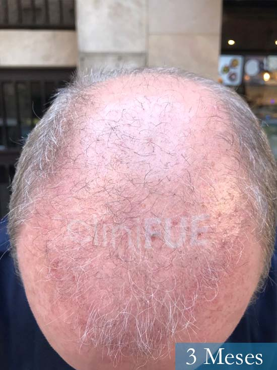 Vicente 54 anos Valencia injerto pelo turquia 3 meses