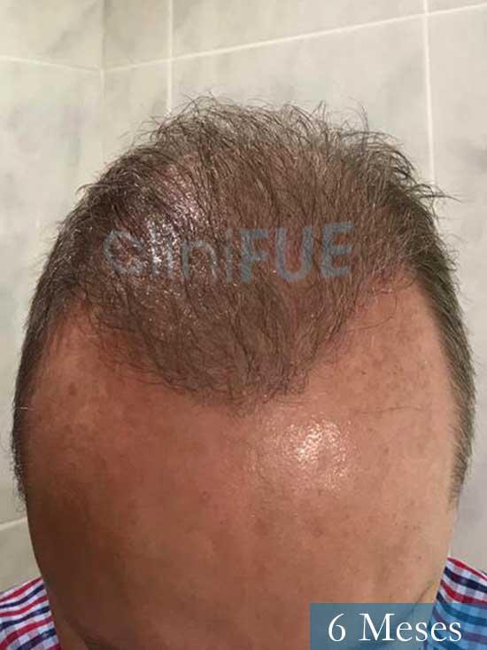 Vicente 54 anos Valencia injerto pelo turquia 6 meses 2
