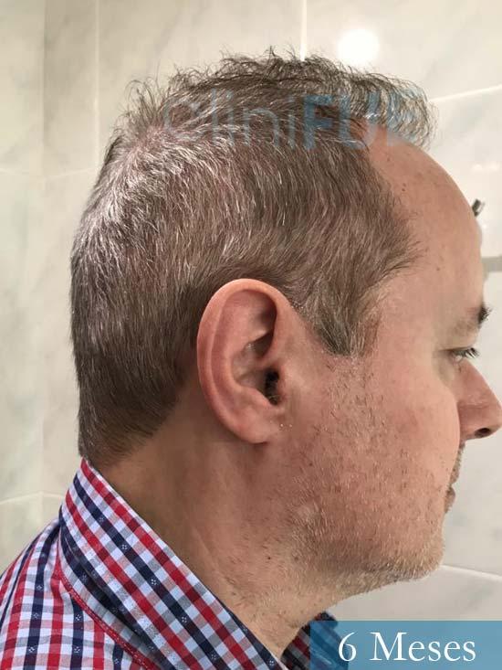 Vicente 54 anos Valencia injerto pelo turquia 6 meses 4