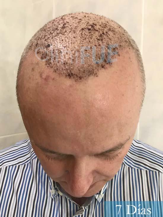Vicente 54 anos Valencia injerto pelo turquia 7 dias