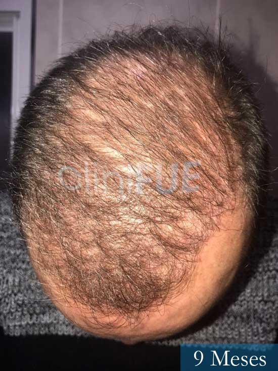 Vicente 54 anos Valencia injerto pelo turquia 9 meses 3