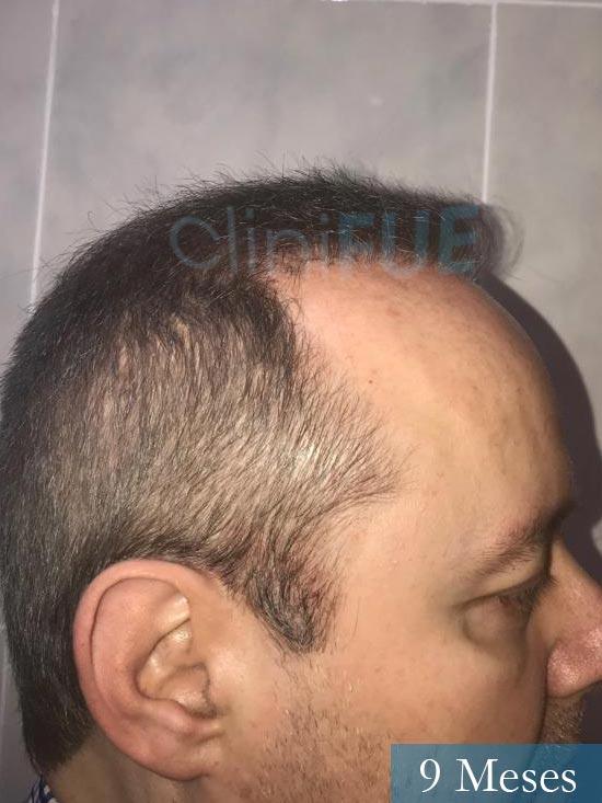 Vicente 54 anos Valencia injerto pelo turquia 9 meses 4
