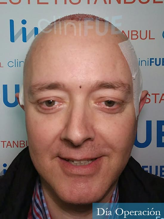 Vicente 54 anos Valencia injerto pelo turquia dia operacion