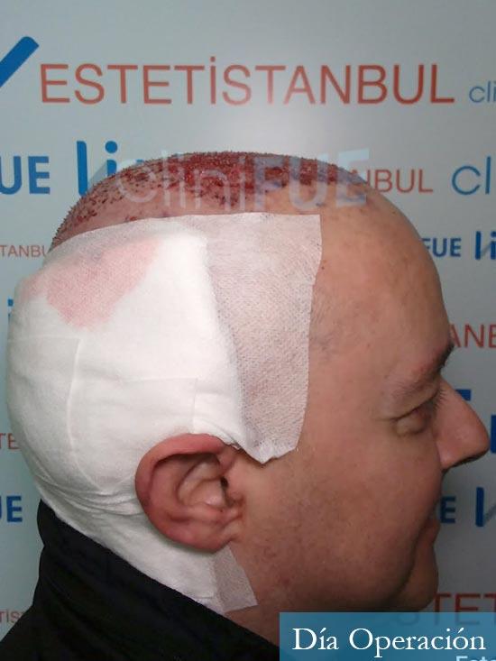 Vicente 54 anos Valencia injerto pelo turquia dia operacion 3