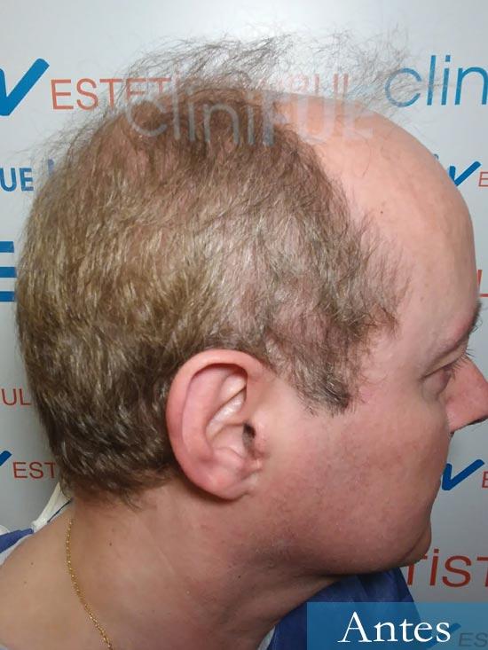 Vicente 54 anos Valencia injerto pelo turquia dia operacion antes 3