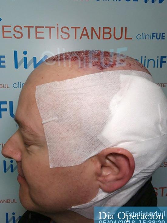 Vicente 54 anos Valencia injerto pelo turquia dia operacion 4