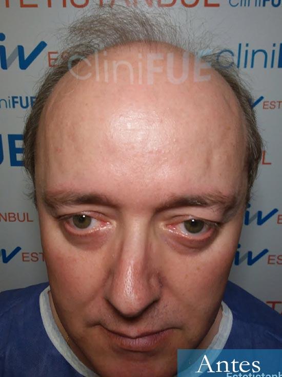 Vicente 54 anos Valencia injerto pelo turquia dia operacion antes